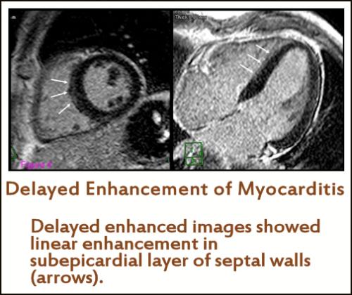 Cardiac MRI / cMRI