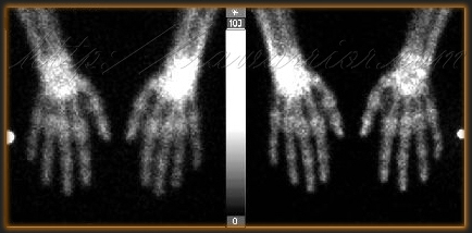 nuclear bone scan hands & wrists