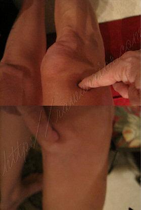 swollen RA knee