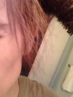 New hair growth after hair loss