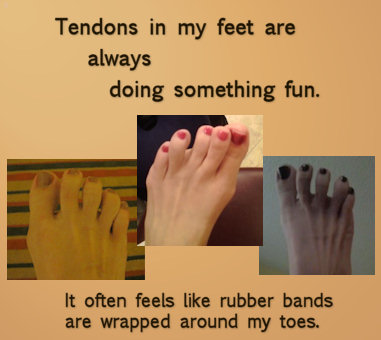 pulling foot tendons