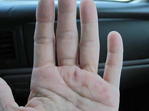 How does a popped blood vessel in the hand occur?