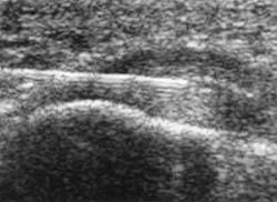 ultrasound foot plantar fasciitis