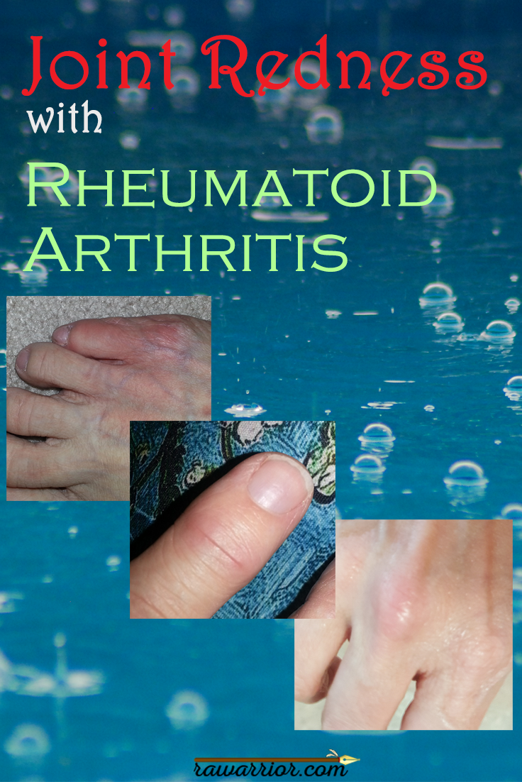 research paper on arthritis