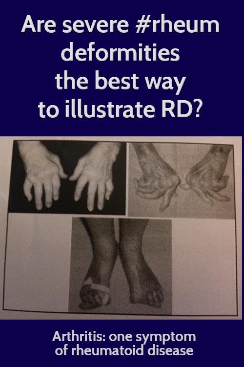 rheumatoid arthritis deformities
