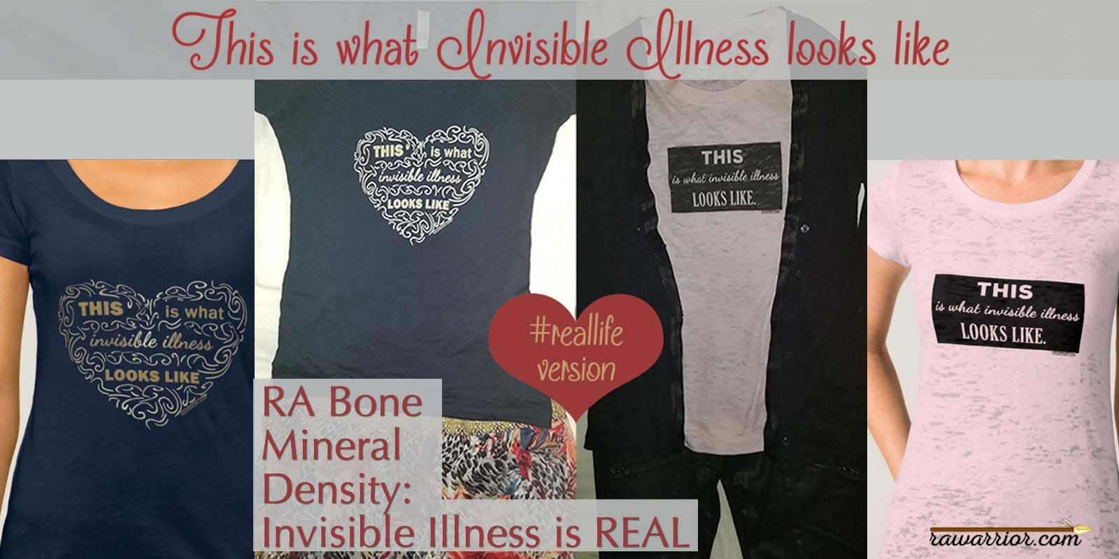 RA Bone Mineral Density is another indicator of invisible illness in RA / RD